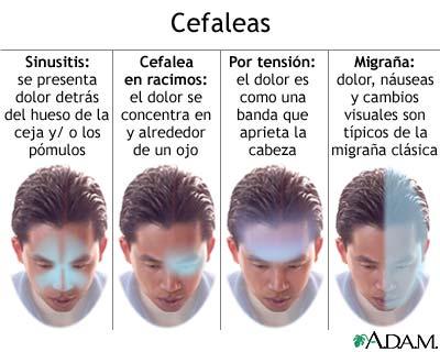 dolor-de-cabeza2.jpg